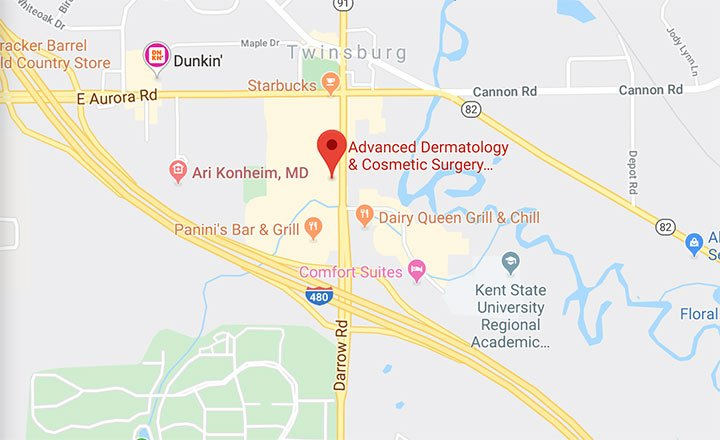 Advanced Dermatology is in Twinsburg Ohio. Click on map for directions