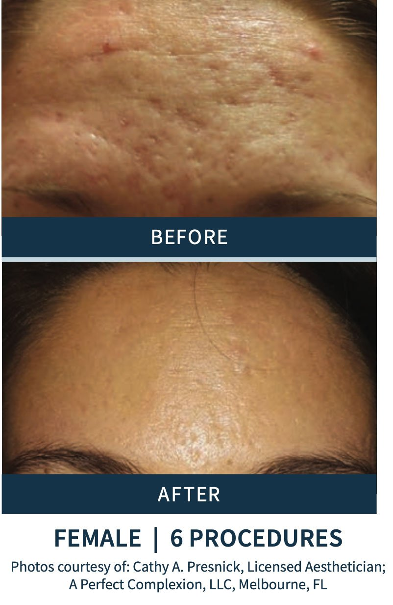 Microneedling before and after pictures