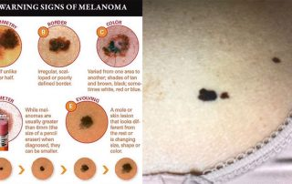 Warning signs of melanoma