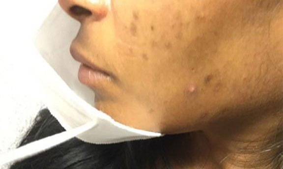 Maskne acne is caused by wearing a face mask.
