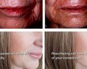 Laser Skin Resurfacing examples