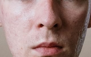 Acne scars on young man