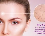 Dry Skin? Use moisturizers (especially after showers) and avoid harsh soaps.