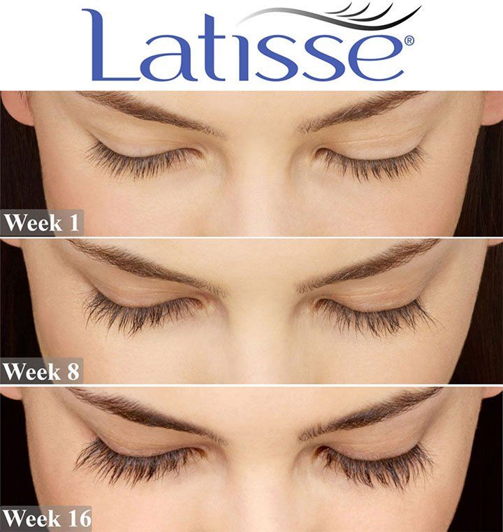 LATISSE® is an FDA-approved treatment to grow eyelashes for people with inadequate or thinning eye lashes.