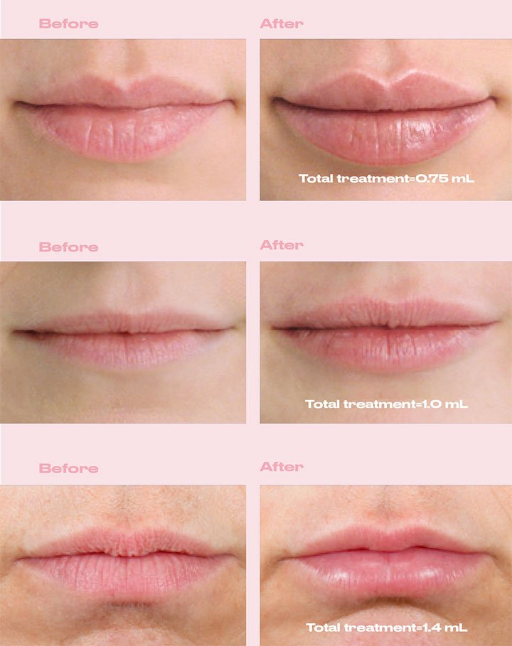 Before and After Restylane Kysse
