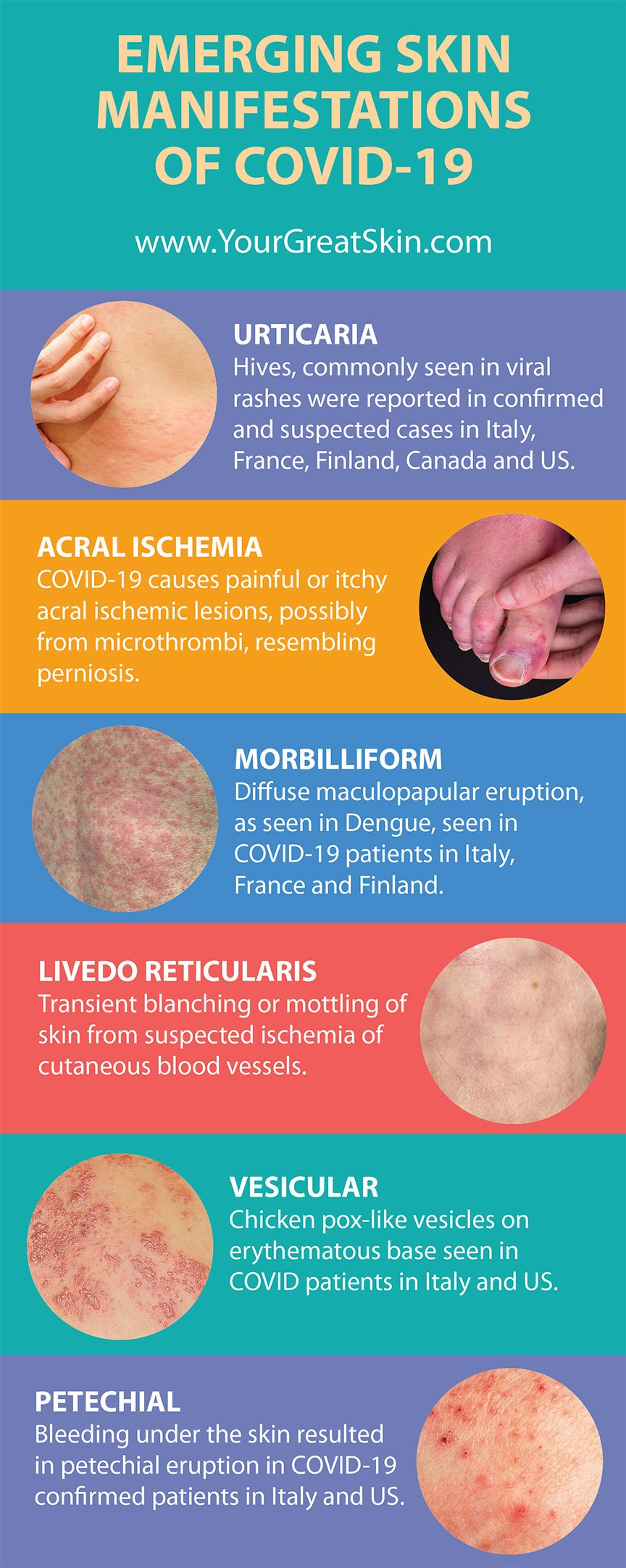 Emerging skin manifestations of Covid-19