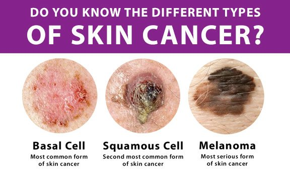 Spotting changes in current moles and/or developing lesions early on can help prevent the development and spread of skin cancer.
